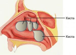Полипозный риносинусит: формы, симптомы и лечение