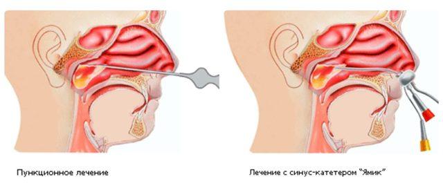 Лечение гайморита при грудном вскармливании: как и чем нужно?