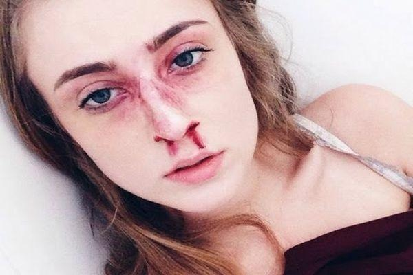 Перелом носа: степень тяжести вреда здоровью при смещении перегородки
