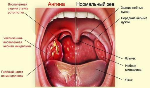 Боль в ухе при глотании: причины и лечение у взрослых и детей