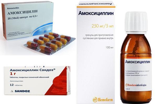 Полипозный синусит гайморит: формы, симптомы и лечение