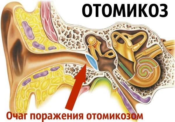Шелушение в ушах: причины и лечение перхоти и сухости