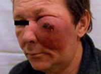 Рак носа и околоносовых пазух: симптомы, причины, формы и стадии развития