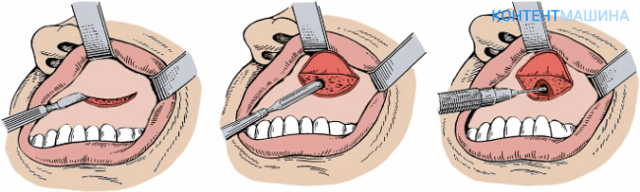 Операция при гайморите: как делают чистку пазух носа?