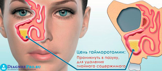 Эндоскопия пазух носа: описание и применение метода