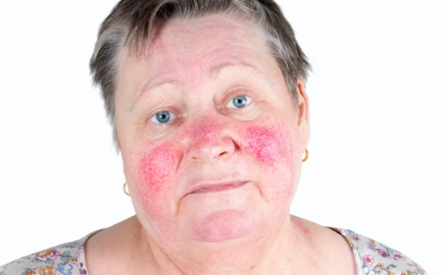Ринофима носа: симптомы, причины и методы лечения