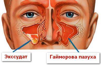 Экссудативный гайморит (синусит): формы, симптомы и лечение