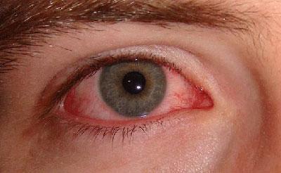 Сульфацил натрия: можно ли капать в нос глазные капли детям и взрослым