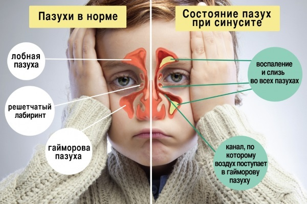 КТ пазух носа: как делают, что показывает и как проводится?