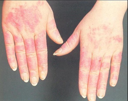 Холодовой ринит: аллергическая реакция на холод симптомы и лечение у взрослых