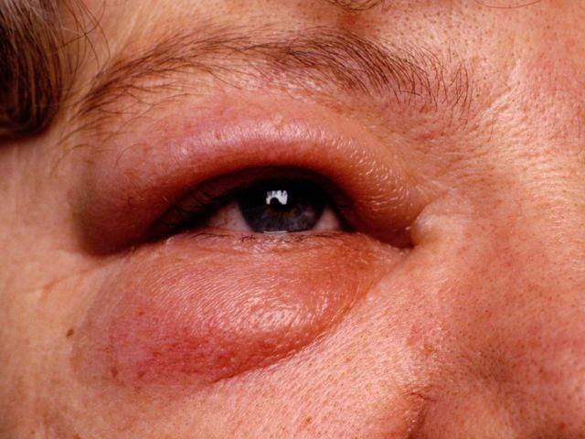 Этмоидит: симптомы и лечение у взрослых и детей