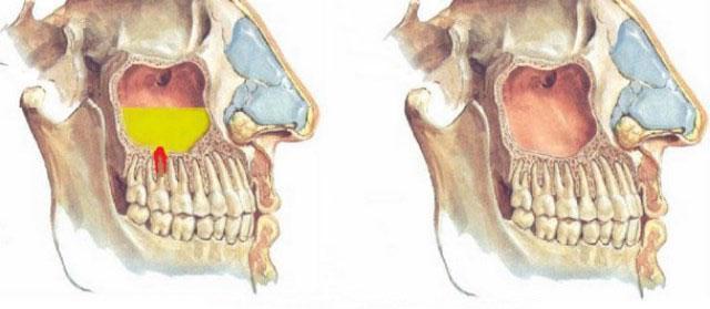 Одонтогенный гайморит (синусит) из-за больного зуба: симптомы и лечение