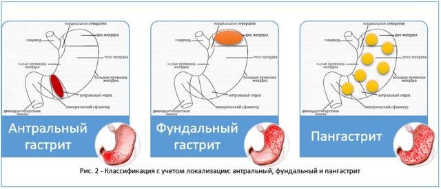 Хронический антральный гастрит: формы и симптомы, диагностика, лечение