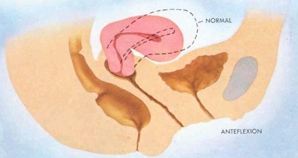 Положение матки anteflexio