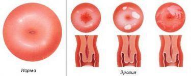 Что такое эрозия шейки матки у женщин