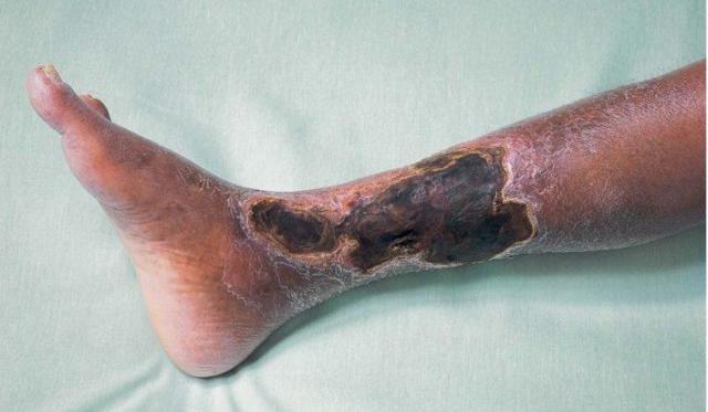 Облитерирующий эндартериит нижних конечностей: симптомы и лечение