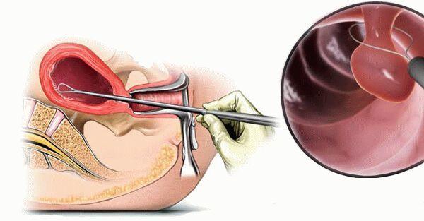 Что такое очаговая гиперплазия эндометрия