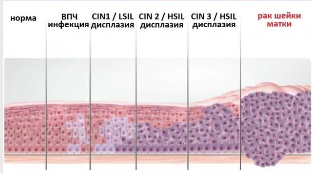 Пролиферация цилиндрического эпителия шейки матки