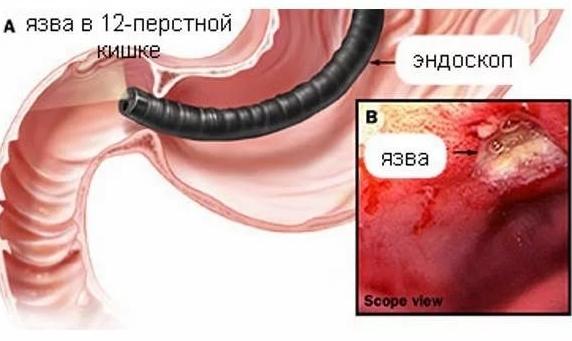 Пептическая язва желудка: причины и факторы риска, симптомы, методы лечения