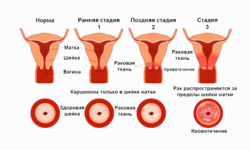 Признаки и симптомы рака матки