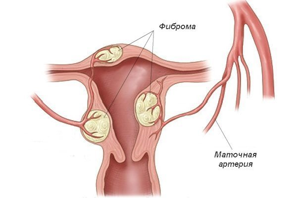 Что такое фиброз шейки матки