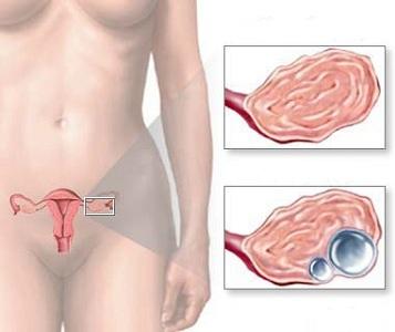 Многокамерная киста яичника: лечение двухкамерного и трехкамерного образования
