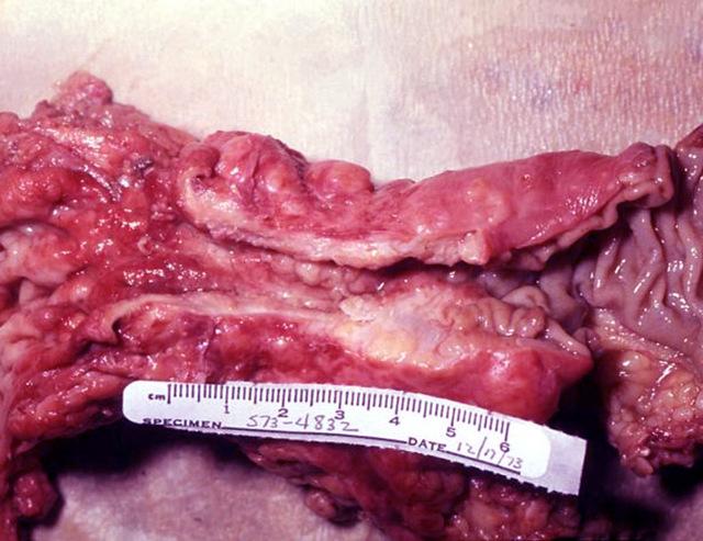 Муцинозная аденокарцинома