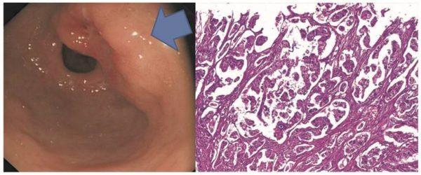Аденокарцинома желудка: виды и стадии, прогноз на разных стадиях, лечение