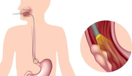 Кольцо Шацкого в пищеводе: что это такое, факторы и причины развития, виды, симптомы, диагностика и лечение