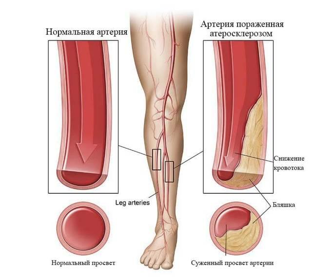 Атеросклероз сосудов нижних конечностей: лечение, симптомы, причины