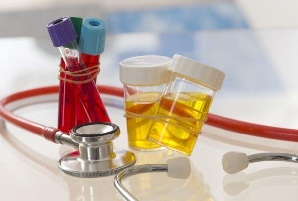 Удаление кисты яичника: надо ли удалять, как проходит операция, последствия, отзывы