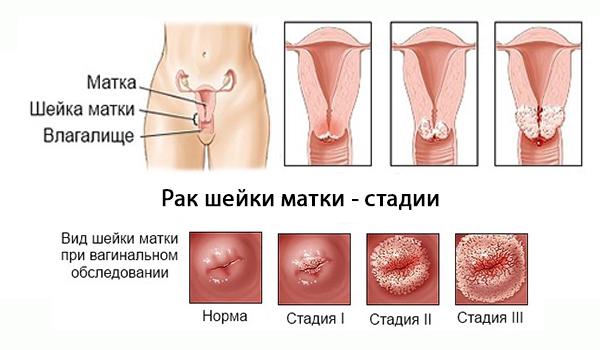 Профилактика рака шейки матки