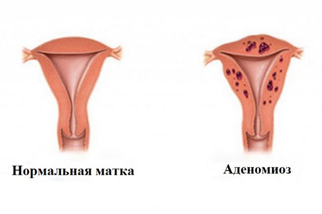 Очаговый аденомиоз матки