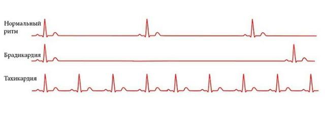 Симптомы тахикардии сердца, признаки и диагностика ее приступов