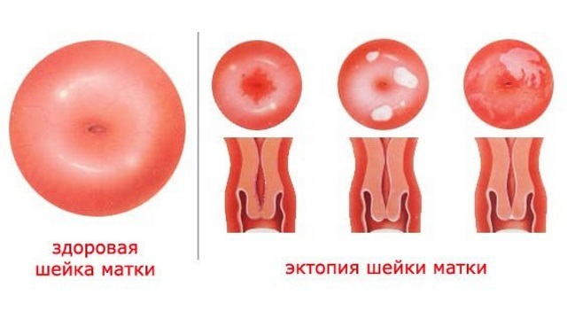 Что такое псевдоэрозия шейки матки