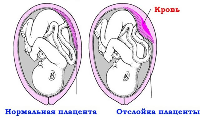 Месячные при беременности: могут ли пойти, признаки, отзывы