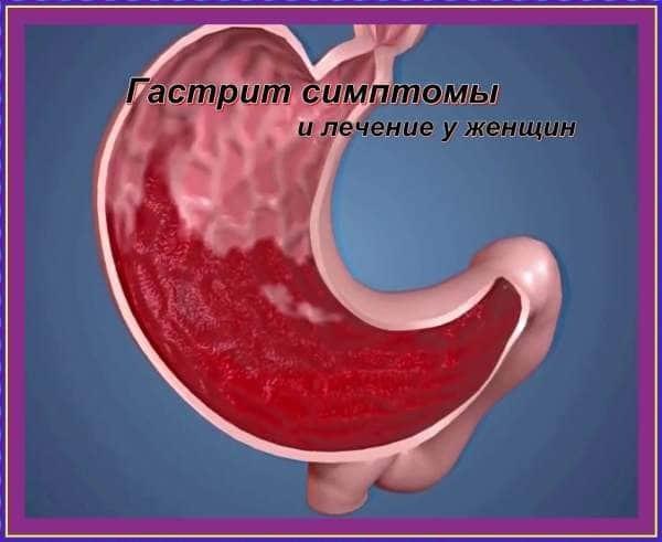 Симптомы гастрита у женщины: что указывает на поражение слизистой желудка