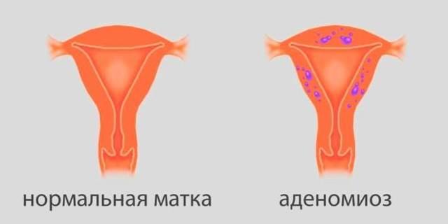 Эндометриоз на узи