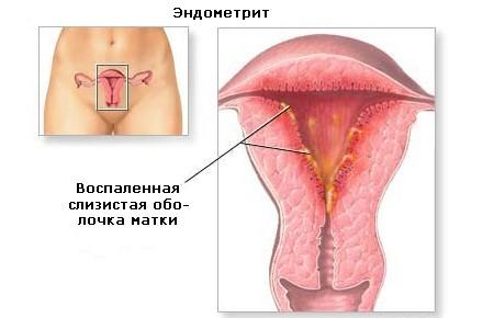 Симптомы и лечение воспаления матки у женщин