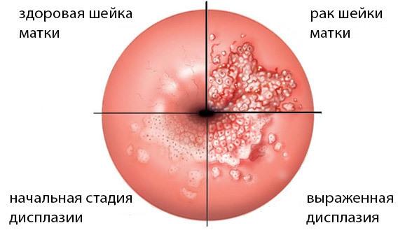 Радиоволновая эксцизия шейки матки: последствия и послеоперационный период
