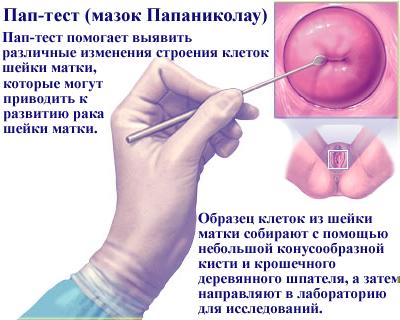 Расшифровка мазка на онкоцитологию