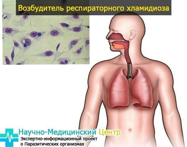 Хламидии у мужчин и женщин: причины возникновения заболевания