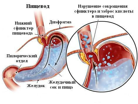 Эзофагит 1, 2, 3, 4 степени: что это такое, причины развития, симптомы, лос-анджелесская классификация эзофагитов