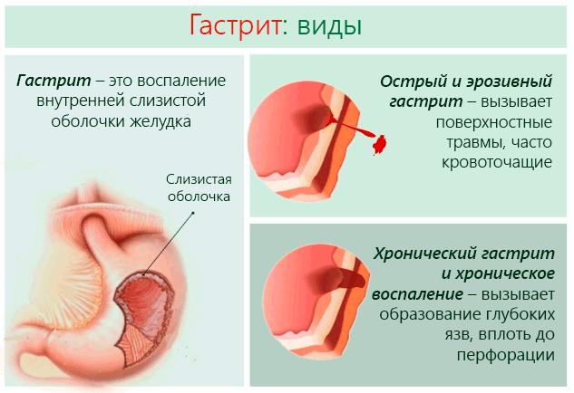 Обострение гастрита: лечение в домашних условиях, чем и как снять приступ, что делать в период ремиссии, рецепты