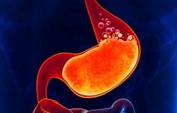 Стеноз пищевода субкомпенсированный: что это такое, код по мкб 10, степени, причины, лечение. Когда развивается пептическая стриктура пищевода?