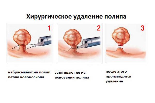 Симптомы и лечение полипов шейки матки