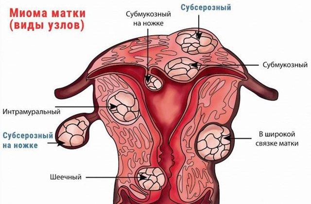 Что такое подслизистая лейомиома матки