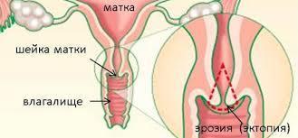 Что такое врожденная эрозия шейки матки