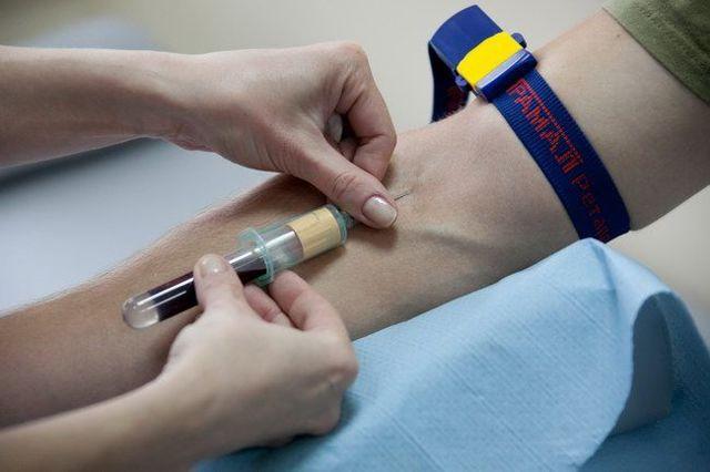 Анализ крови на rw – что это и как расшифровать