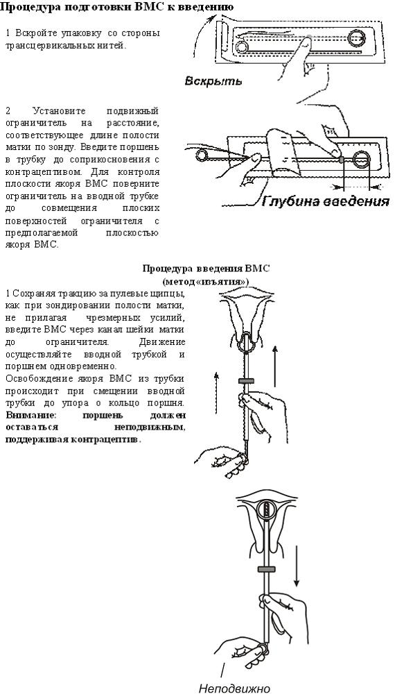 Спираль Юнона: инструкция, отзывы врачей, цены